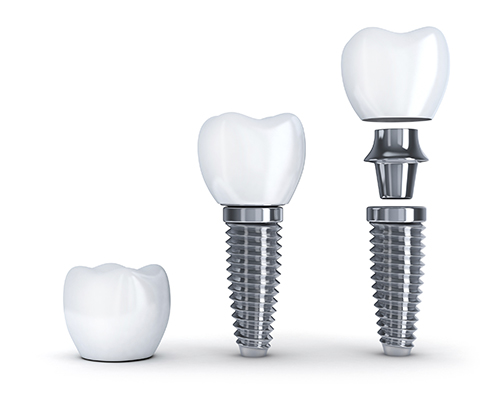 Dental Implants at Mintie Family Dentistry].