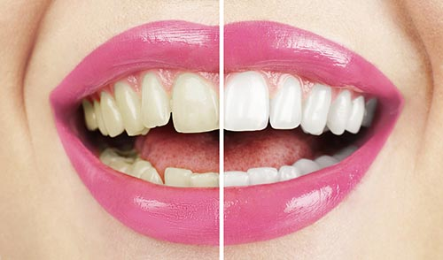 Teeth Whitening before and after at Mintie Family Dentistry.