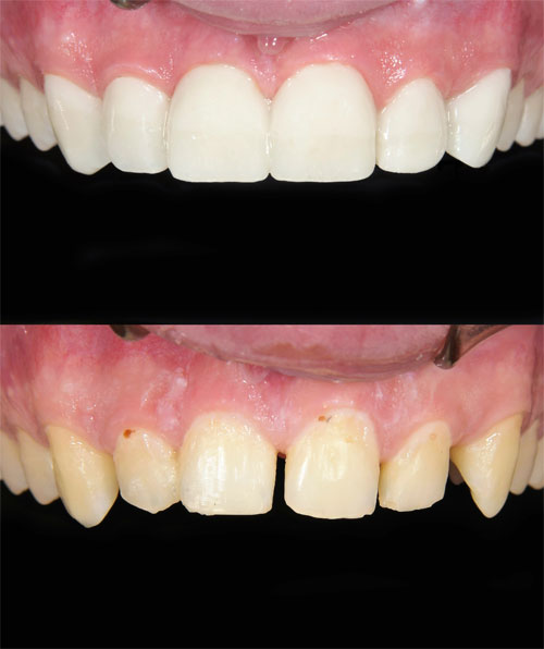 After image of veneers from Mintie Family Dentistry.